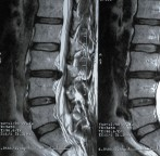 Still Suffering from a Herniated Disc?