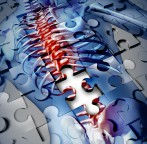 Still Puzzled by Your Back Pain?