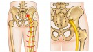 Sciatica - Best Way To Treat Sciatic Pains