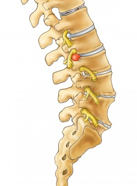 Sciatic Nerve Pain - Bulging Disc